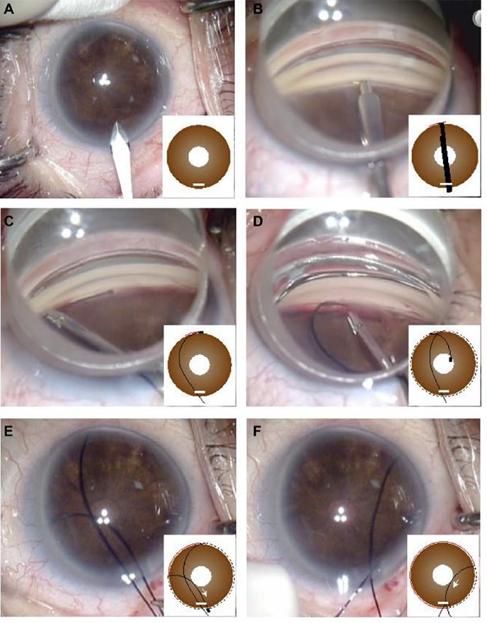 スーチャートラベクロトミー(眼内法)